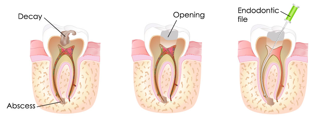 Root Canal Treatment St Helens at Corner Dental Surgery